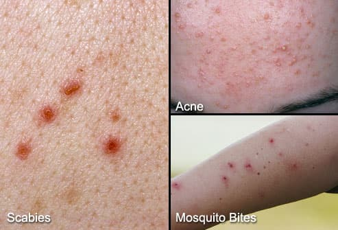 Scabies  Acne and Mosquito Bites