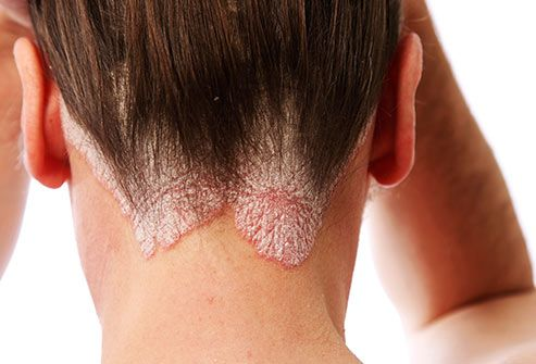 Scalp psoriasis is a skin disease that may cause itchy patches of thick, red skin with silvery scales 3