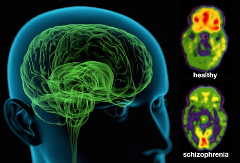 http://img.webmd.com/dtmcms/live/webmd/consumer_assets/site_images/articles/health_tools/schizophrenia_overview_slideshow/webmd_rm_photo_of_schizophrenic_brain.jpg