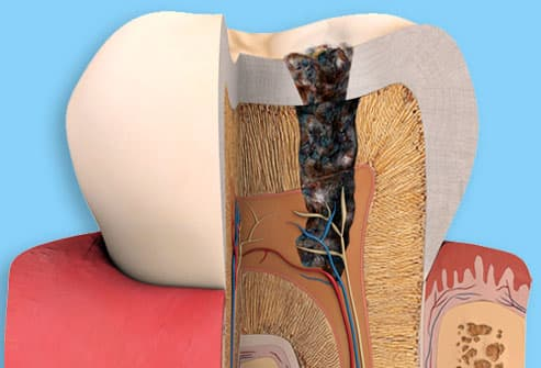 Illustration of Tooth Decay