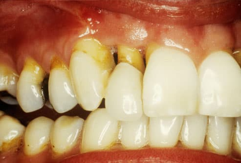 Close Up of Gingival Recession