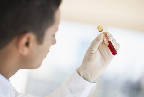technician holding blood sample