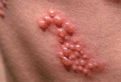 Small blisters at the onset of shingles oubreak
