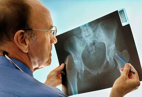 surgeon consulting xray of hip