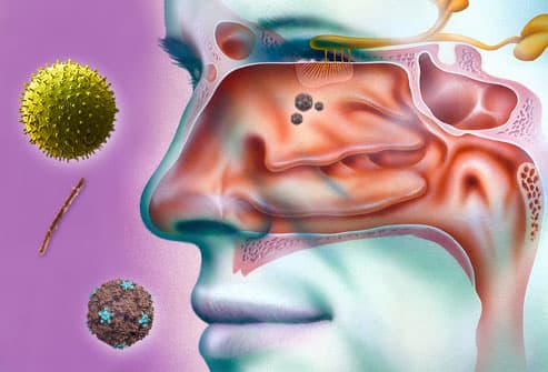 Sinuses With Allergen Particles