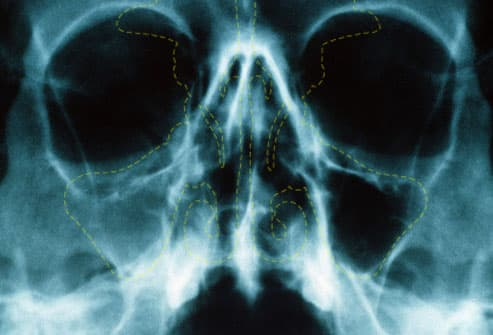 X-ray of a patient with acute sinusitis