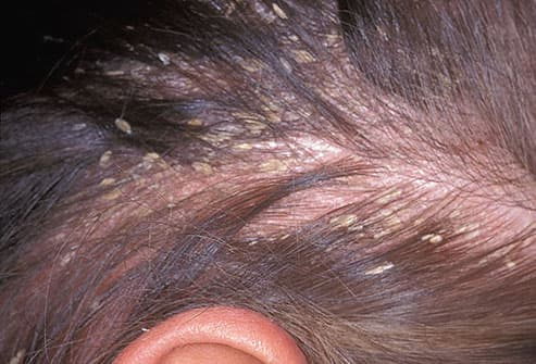 It's considered effective for preventing dandruff caused by seborrheic dermatitis, eczema and psoriasis 2