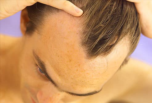 of hair around the sides of the head medications to slow hair loss