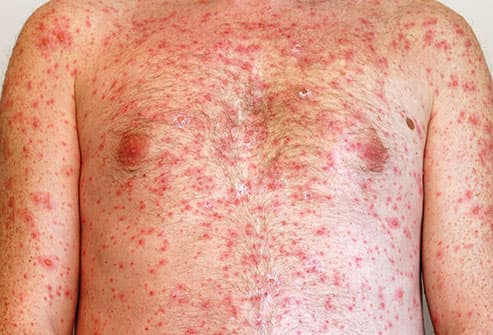 chicken pox on mans chest