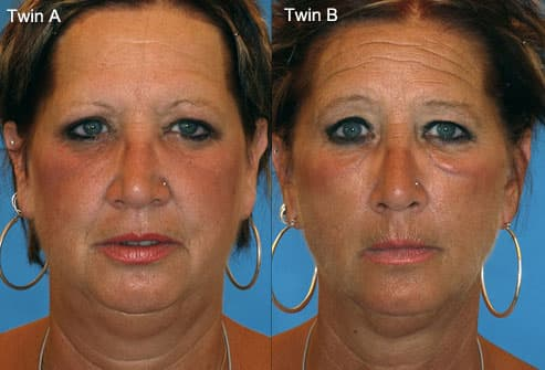 Photo of identical twins, one smoker