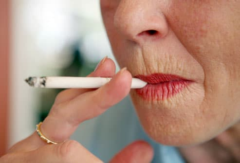 Woman With Wrinkled Lips From Smoking