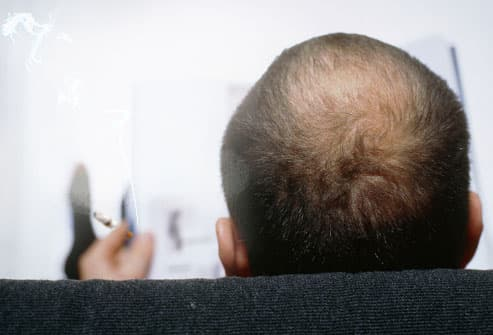 Smoking Causes Hair Loss