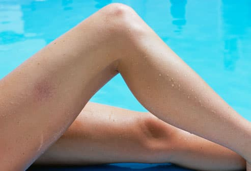 Spider Veins on Woman