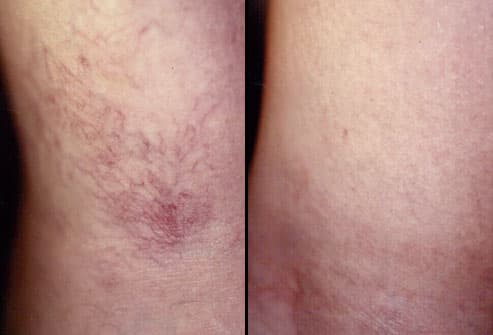 spider veins before and after sclerotherapy