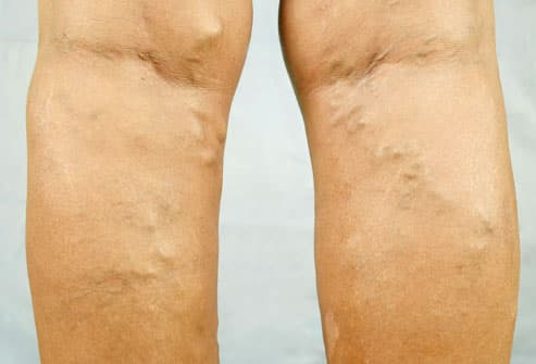 Varicose Veins on back of Woman's Legs