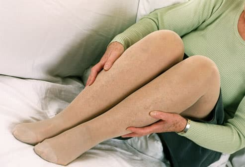 Mature woman wearing support hose