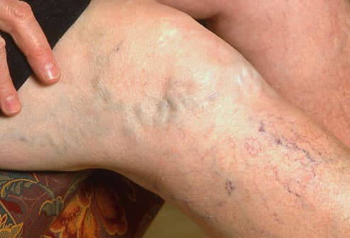 Get Rid of those Varicose Veins