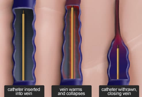 Radiofrequency ablation for large varicose veins