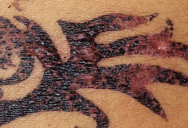 Picture of henna tattoo reactions for Tattoos and eczema