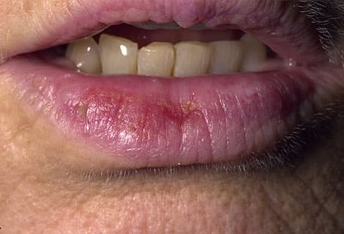 Scaly patches or persistent dryness and cracking of the lips may be present.