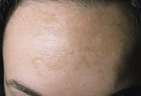 Melasma (pregnancy mask) on forehead