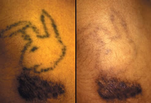 The FDA suggests that people seeking tattoo removal see a doctor,