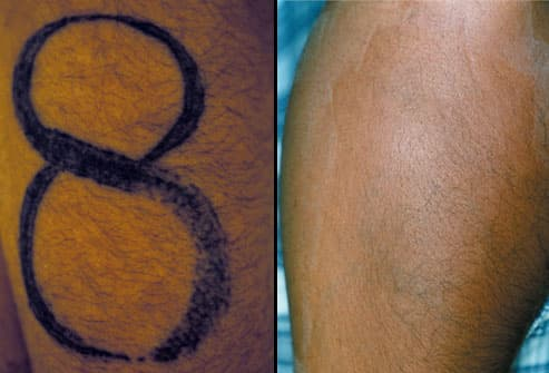 Tattoo Removal. Tattoos can be removed. Sometimes, particularly if the