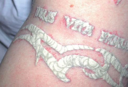 Scar Tattoo Before And After Tattoo removal: what to expect