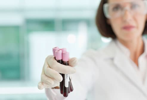 Lab worker holding blood test vials