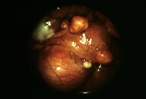 endoscopic view of uterine fibroids