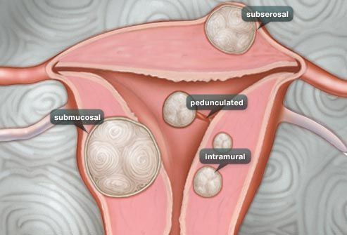 illustration showing variety of fibroids