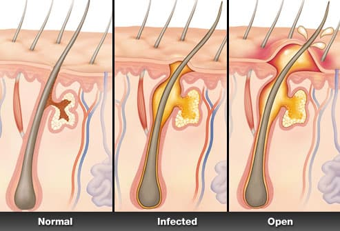 doctor s care is needed when a boil resists treatment or develops in ...