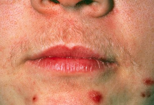 Hirsutism caused by polycystic ovary syndrome
