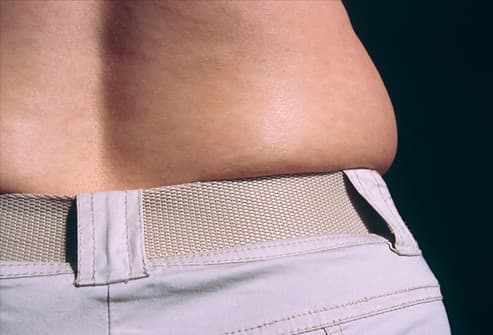 Close-up of woman's fat mid-section and trousers