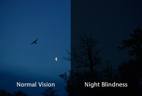 what is night blindness Webmd explains the possible causes and treatment of night blindness, or poor vision in low light.