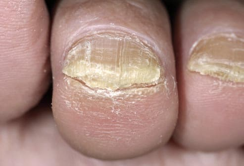 fungus on toenail
