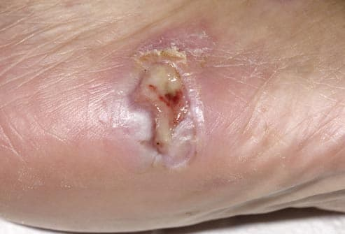 oozing wound on foot