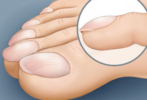 illustration of clubbed toes