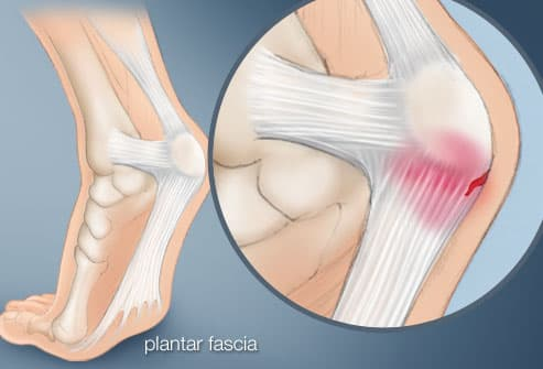 illustration of heel pain
