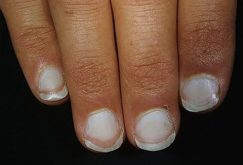 Fingernail beds that are almost completely white
