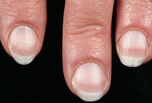 Fingernails and Thyroid Disease http://www.webmd.com/skin-problems-and-treatments/ss/slideshow-nails-and-health