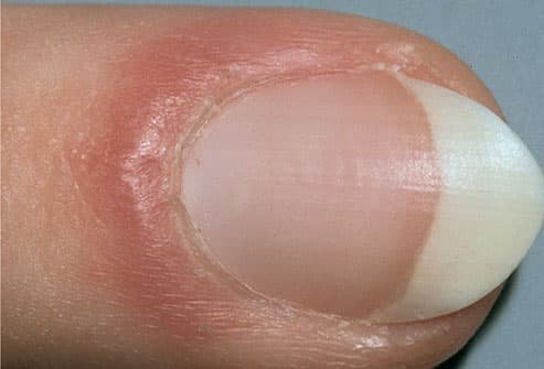 Inflammation of the nail fold