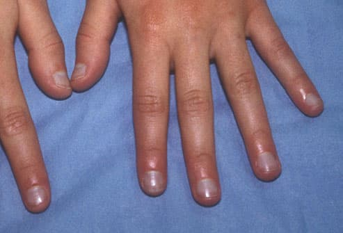 Essential acrocyanosis of the hands