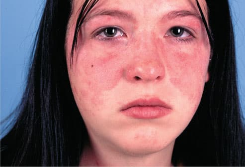 A butterfly rash across the face is often the first sign of lupus