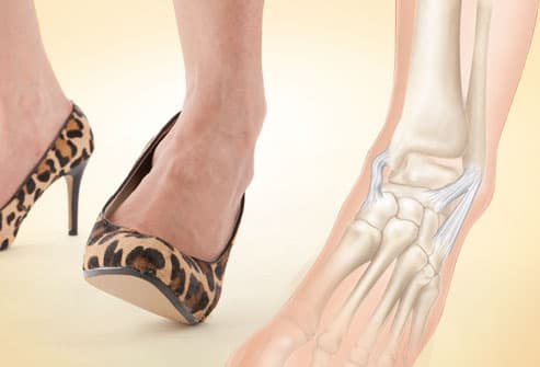 High heels causing twisted ankle