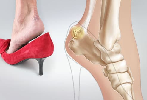 orthotics for achilles tendonitis. in the Achilles tendon.
