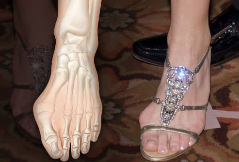 Bunion composite