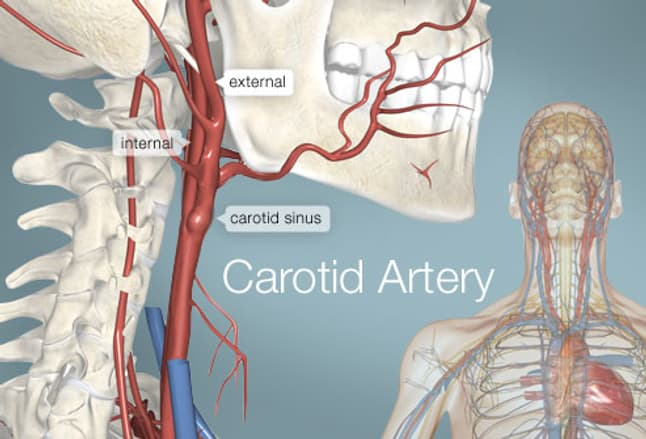 carotid artery (human anatomy): picture, definition, conditions, Human Body