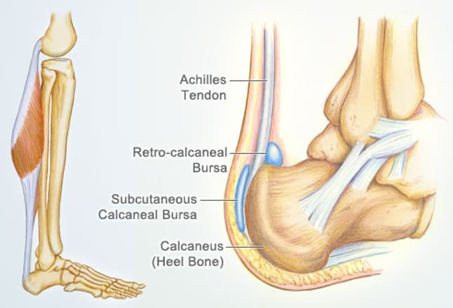 Illustration of Achilles Tendon