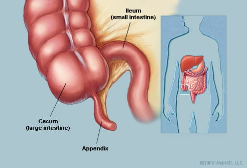 Appendix (Anatomy): Appendix Picture, Location, Definition ...
